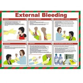 External Bleeding First Aid Laminated Poster